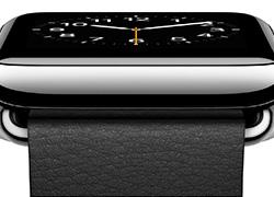 Win the new Apple Watch